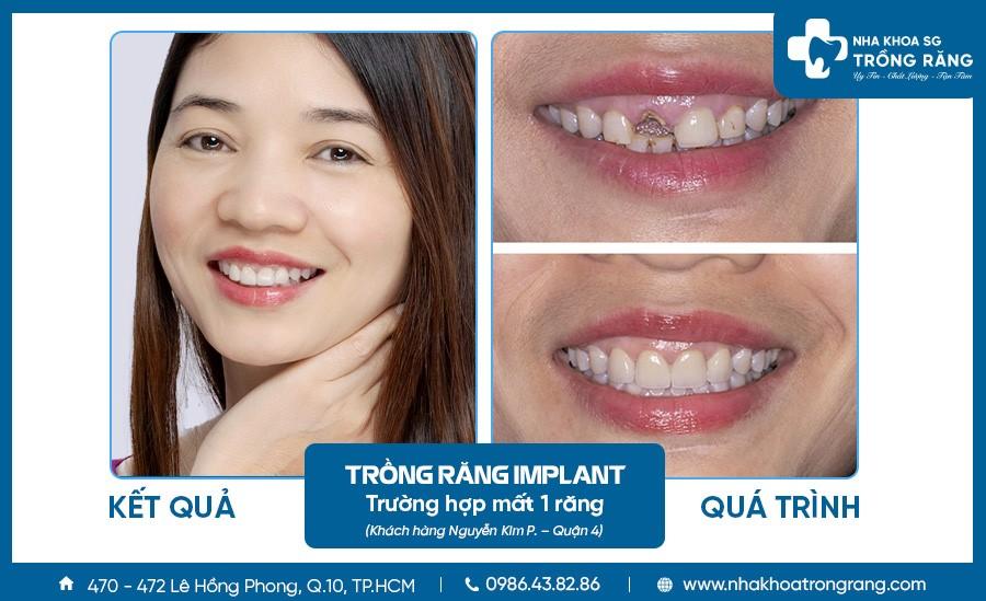 Kết quả trồng răng implant trường hợp mất 1 răng