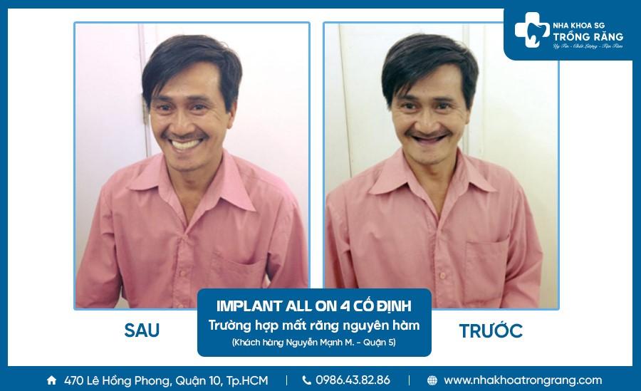 khách hàng M trồng răng implant all on 4 cố định