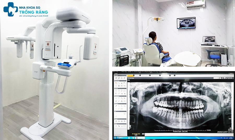 máy chụp ct 3d conebeam nha khoa trồng răng sài gòn